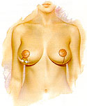 breast reduction fig c